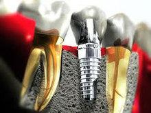 Best Implant Dentist | Teeth Loss Treatment India | Dental Implantologist Kerala | Dental Treatments | Scoop.it