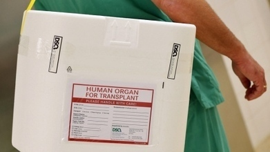Organ donation after cardiac death | Investment | Scoop.it