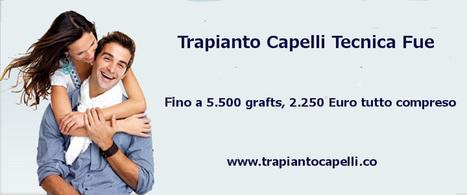 Trapianto Capelli Milano   trapianto capelli   Scoop.it
