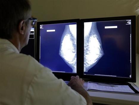 La hausse du nombre de cancers du sein inquiète les experts - Boursier.com | Future Patient | Scoop.it