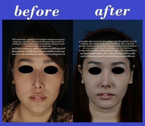 Best Rhinoplasty In Thailand: Revised Rhinoplasty Using Rib Cartilage   The Best Nose Job In Thailand   Scoop.it