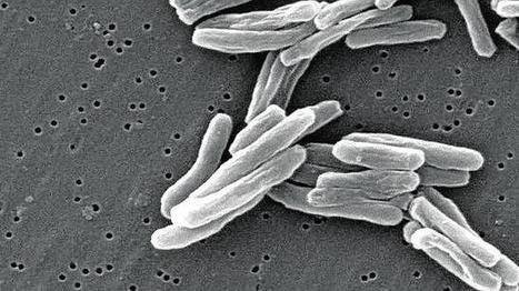 La tuberculosis se originó en África hace 70.000 años | CienciaHoy | Scoop.it