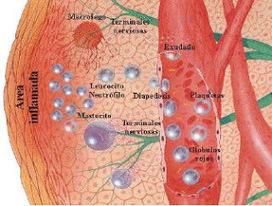 Foro Farmacéutico: El Proceso Inflamatorio | BARRERAS FISICA, QUIMICA, BIOLOGICA E INFLAMACION | Scoop.it