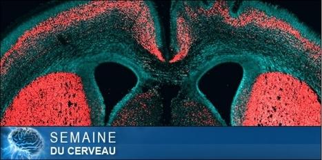 Le gène qui rend notre cortex si humain | Veille scientifique Neuroscience | Scoop.it
