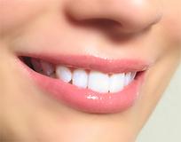 Teeth Whitening Hyderabad | Best Dental Hospital Chanda Nagar | Scoop.it