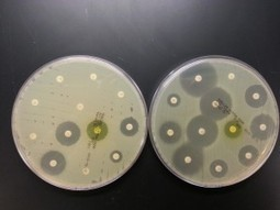 Single bacterial super-clone behind world epidemic of drug-resistant E. coli - UW Today | Restaurant Success | Scoop.it