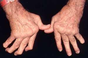 Transfer Factor Untuk Mengatasi Rheumatoid Arthritis | Tokoina | Scoop.it