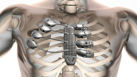 The World's First 3D-Printed Titanium Rib Cage Is a Medical Marvel | #3DPrinting | 21st Century Innovative Technologies and Developments as also discoveries, curiosity ( insolite)... | Scoop.it
