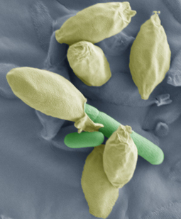Spores for thought: study provides new insights into Clostridium spores   Institute of Food Research   Institute of Food Research News   Scoop.it
