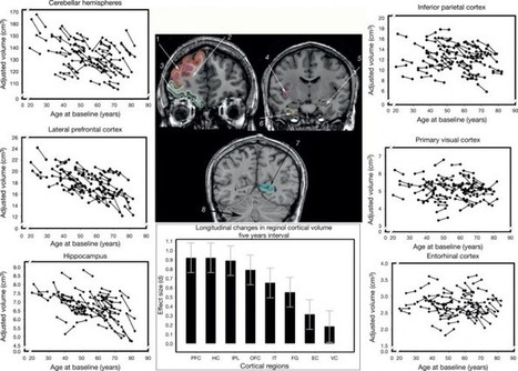 Neuroanatomy: Aging of the Brain Gray and White Matter   SciTech Connect   Mental Health   Scoop.it