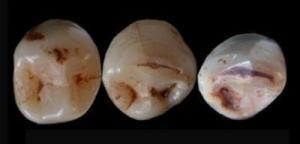 Ancient teeth raise new questions about origins of modern humans | History | Scoop.it