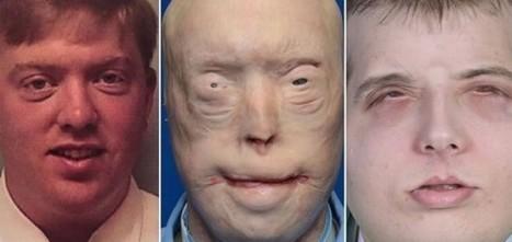 Most Extensive Face Transplant: A Success - Nursing Crib   Random Stuff On The Net   Scoop.it