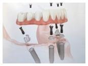 Implant Retained Dentures   Glasgow Denture Studio   Scoop.it