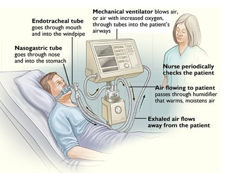 ICU ventilators overused with advanced-dementia patients | UW HSNewsBeat | Nurse Innovators | Scoop.it