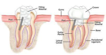 Aesthetic Dental Treatments in Delhi   Dental Clinic Delhi   Scoop.it