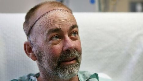 Surgeon describes first skull and scalp transplant, Newshour - BBC World Service | Organ Donation & Transplant Matters Resources | Scoop.it