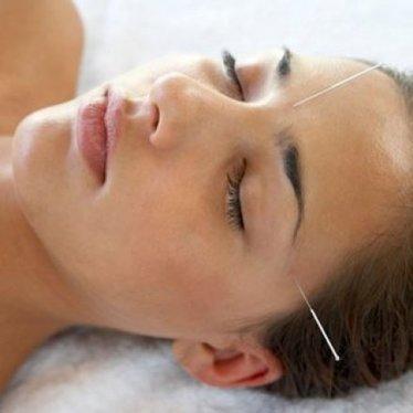 Tout connaitre sur l'acupuncture - Avantages   Ling Dao école de Formation Massages Acupuncture Naturo   Scoop.it