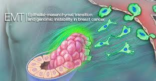 Transition in cell type parallels treatment response, disease progression in breast cancer | Breast Cancer News | Scoop.it