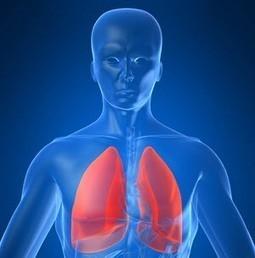 Cancer du poumon - Diagnostic & traitement | Roche | Health , Preventive  health | Scoop.it