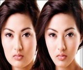 Jaw reduction by BOTOX Injection - Urban Beauty Thailand | Facelift Thailand Find Thai Face Lift Best Surgeons in Bangkok, Phuket Thailand | Scoop.it