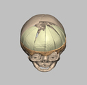 Tech Spotlight: 'SKULLptural' CAD betters cranial implants | 3D Maxillofacial Imaging | Scoop.it