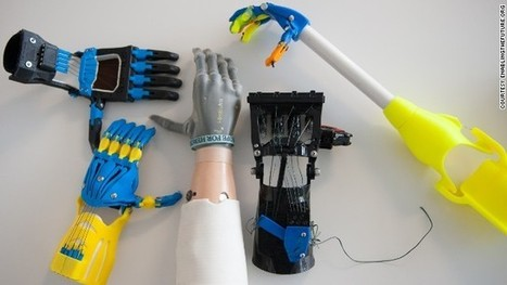 How to print yourself a new hand   tecnologia s sustentabilidade   Scoop.it