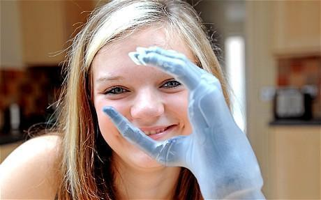 Bionic fingers' youngest recipient is just 15-year old | Entrepreneurship, Innovation | Scoop.it