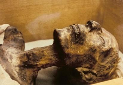 Mummy remains refute antiquity of ankylosing spondylitis | Egyptology and Archaeology | Scoop.it