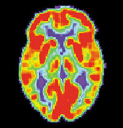 Neuromyths Busting and Education | Education For The Future | Scoop.it
