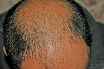 Need a Hair Transplant? The Cost of Hair Transplant in Mexico is Lower | BajaHairCenter | Scoop.it