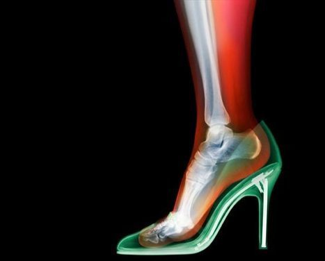 Unusual X-Ray Photography by Nick Veasey | Foto's | Scoop.it