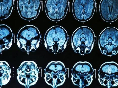 New mechanism behind Alzheimer's onset identified | Neurological Disorders | Scoop.it