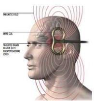 Brain Stimulation Makes the 'Impossible Problem' Solvable | The Creativity Post | Kreativitätsdenken | Scoop.it