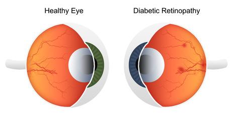 Diabetic Retinopathy Treatment   Eye Care   Scoop.it