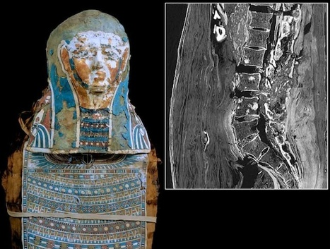 Mummy Had History's Second-Oldest Prostate Cancer Case - Wired News | Ancient History- New Horizons | Scoop.it