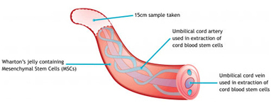 Why umbilical cord preservation   Cord Blood Banking: For long term preservation   Scoop.it