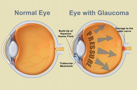 Get Treated for Glaucoma   Eye Care   Scoop.it