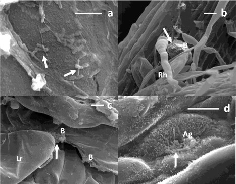 Endophytic colonization of sugarcane ( Saccharum officinarum ) by the novel diazotrophs Shinella sp. UYSO24 and Enterobacter sp. UYSO10 | Plant-Microbe Symbiosis | Scoop.it