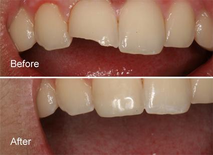 Composite Restorations in Delhi | Dental Clinic in New Delhi | Scoop.it