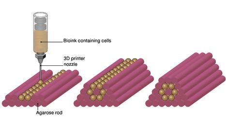 Une start-up française invente l'impression laser de tissus humains   Vous avez dit Innovation ?   Scoop.it