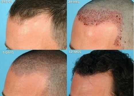Helpful Tips for the Post Hair Transplant Operative Self Care | Hair Transplantation Turkey | Scoop.it