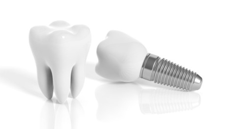 Getting Dental Implants: A Deep Understanding on the Factors Involved | Downtown Dental | Scoop.it