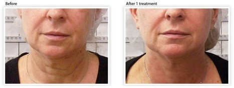 Wrinkle Reduction | wrinkle reduction boca raton | Scoop.it