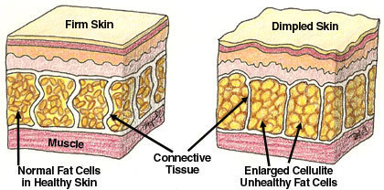What is Cellulite - Dermatologist Opinion on Cellulite   How to Get Rid of Cellulite - 5 Critical Keys to Kill Your Cellulite   Online Help   Scoop.it