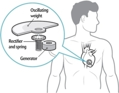 Pacemaker Powered by Heartbeats Has Watch Parts | Electrophysiology & Pacing Science News | Scoop.it