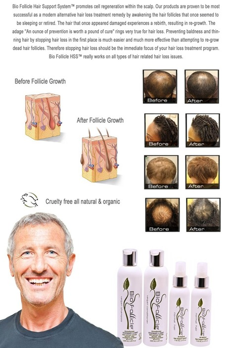 Bio Follicle - Stop Hair Loss Today! | Thinning Solutions | Stop Hair Loss | Scoop.it
