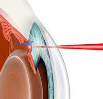 Glaucoma Surgery | Eye Surgery | Scoop.it