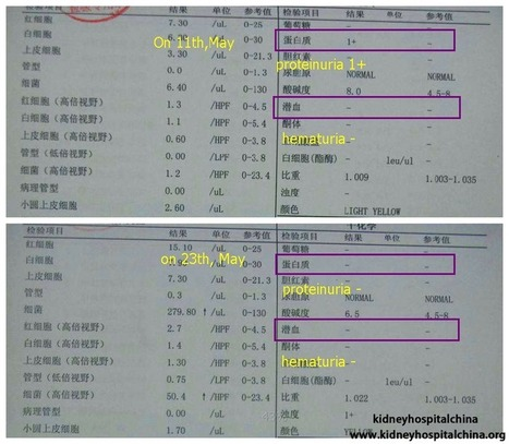 Lupus Nephritis: Both Proteinuria and Hematuria Become Negative After Treatment | kidney disease | Scoop.it