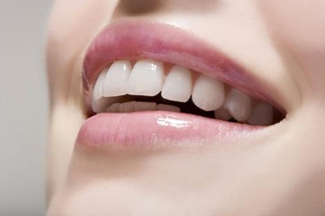 be pro dentist: دبلوم دولي معتمد في تجميل الاسنان باشهر المناطق السياحيه في لبنان   spc   Scoop.it