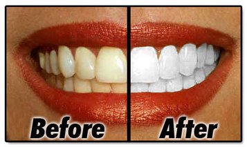 Improve Your Smile - How Teeth Whitening Works? - | Health & Weight Loss | Scoop.it